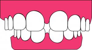 Zapal dasien vyrieši zubár